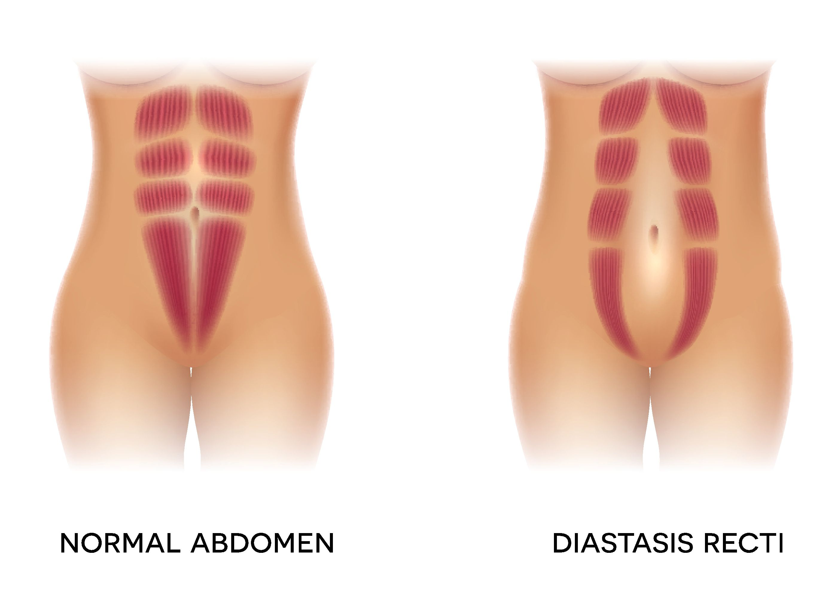 Is It Too Late To Fix Diastasis Recti?