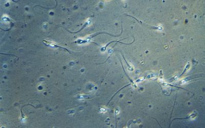 Semen Analysis: How It's Done and Understanding Results