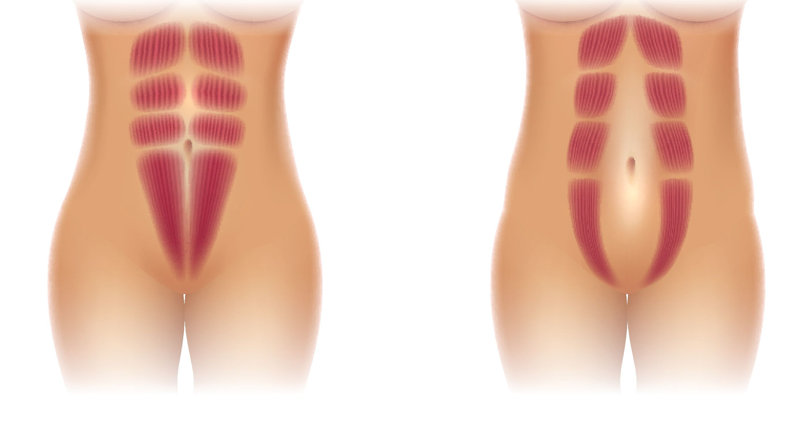 Can Diastasis Recti Cause Burning Pain