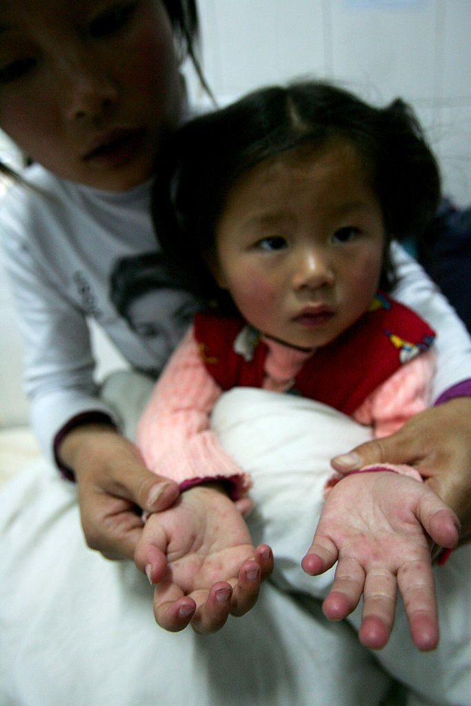 A child with hand, foot, and mouth disease.