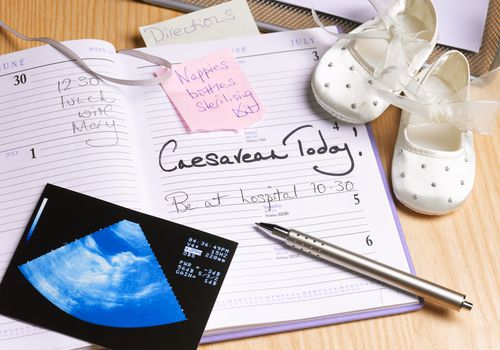 Cesarean Calendar