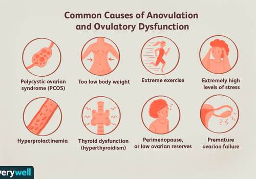 Common causes of anovulation and ovulatory dysfunction