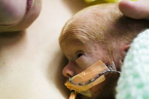 Kangaroo holding is an important part of developmental care in the NICU.