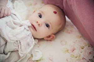 Baby girl with hemangioma waking up