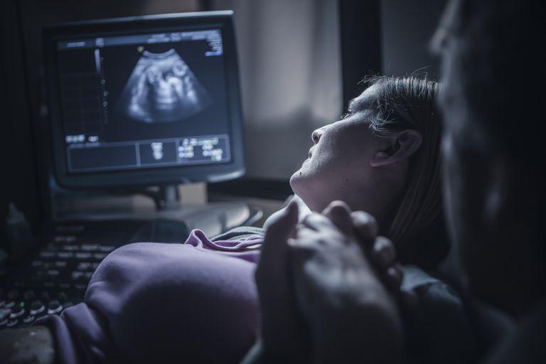 pregnancy ultrasound