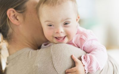 Mother holding baby girl with Down syndrome