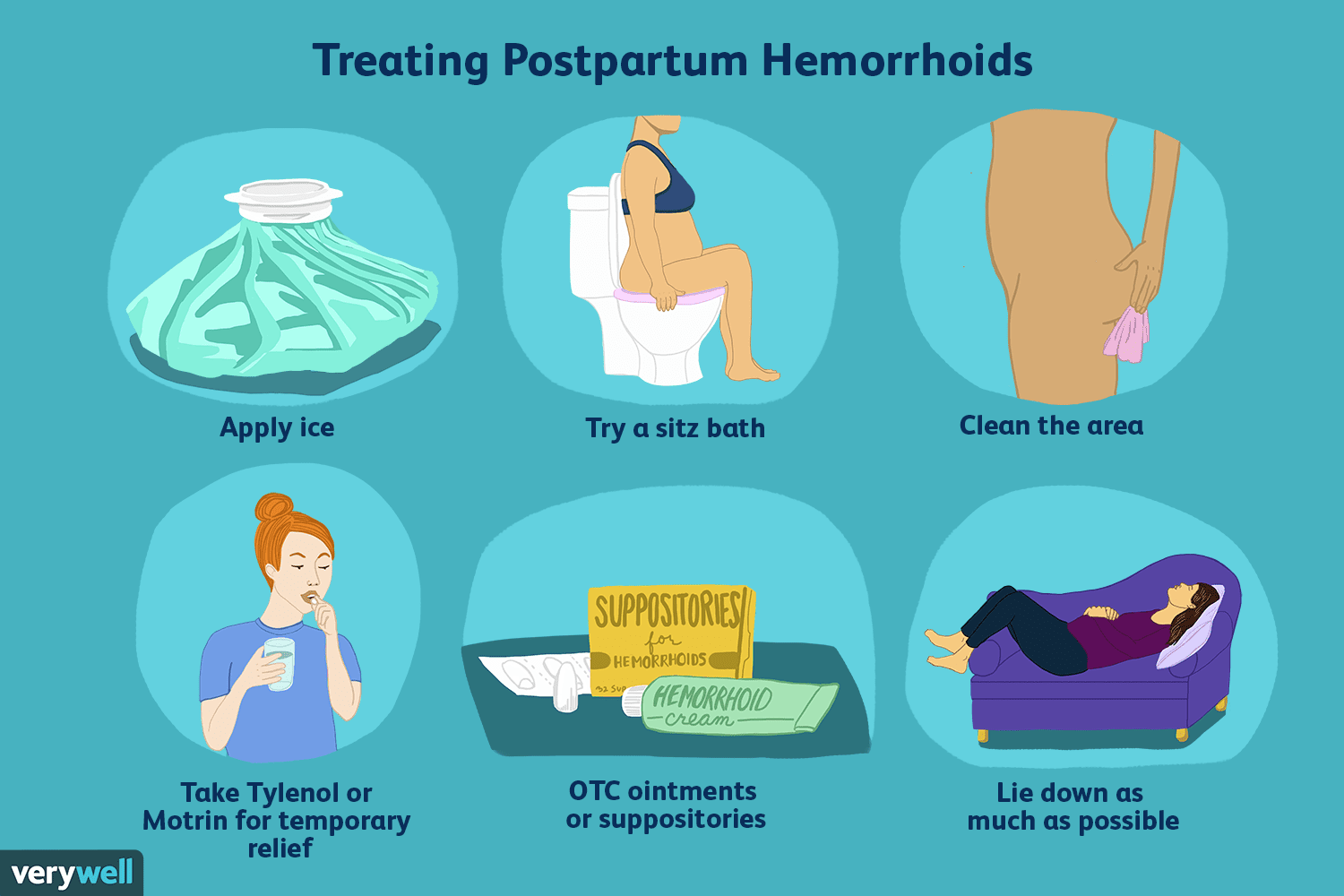 Hemorrhoids After Giving Birth: At-Home Treatments