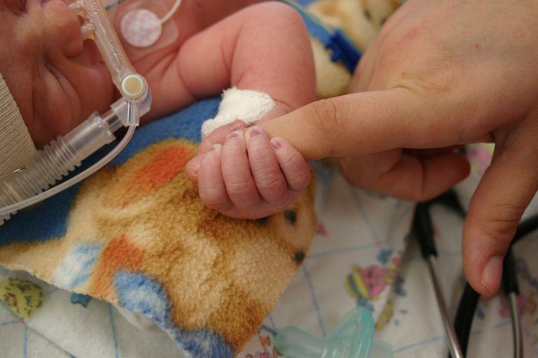 Newborn wearing a ventilator, holding an adult's finger