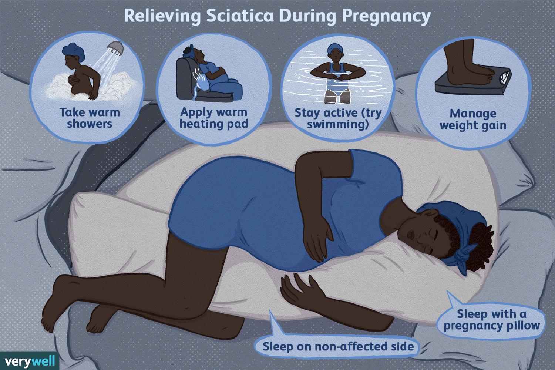 Relieving sciatica during pregnancy