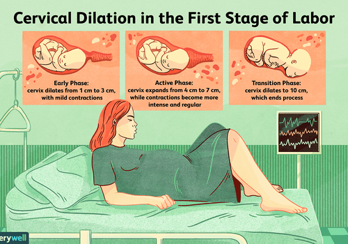 Illustration of cervical dilation in the first stage of labor