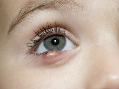 A child with a stye on his lower eyelid.