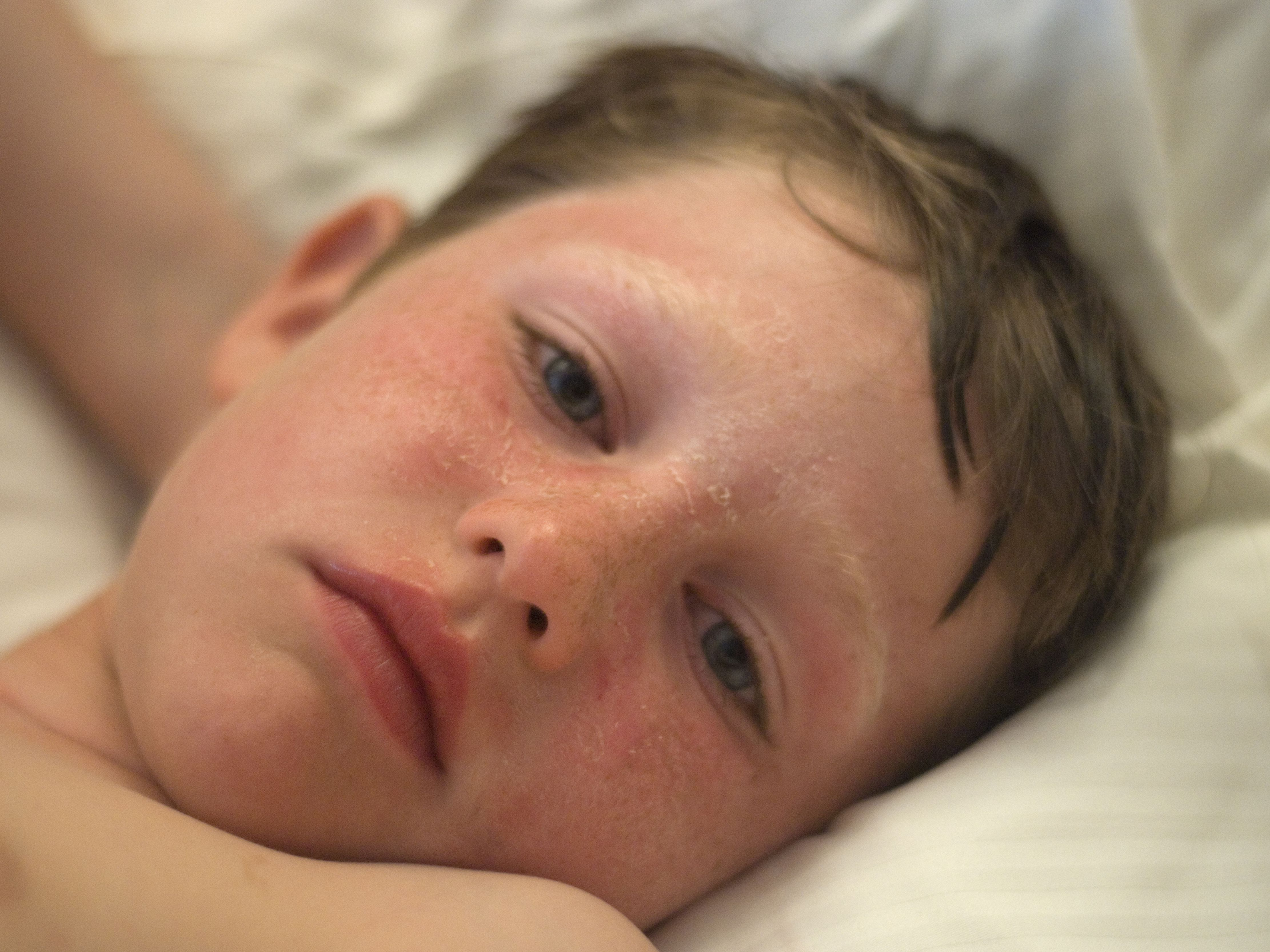 Treating Sunburns In Children