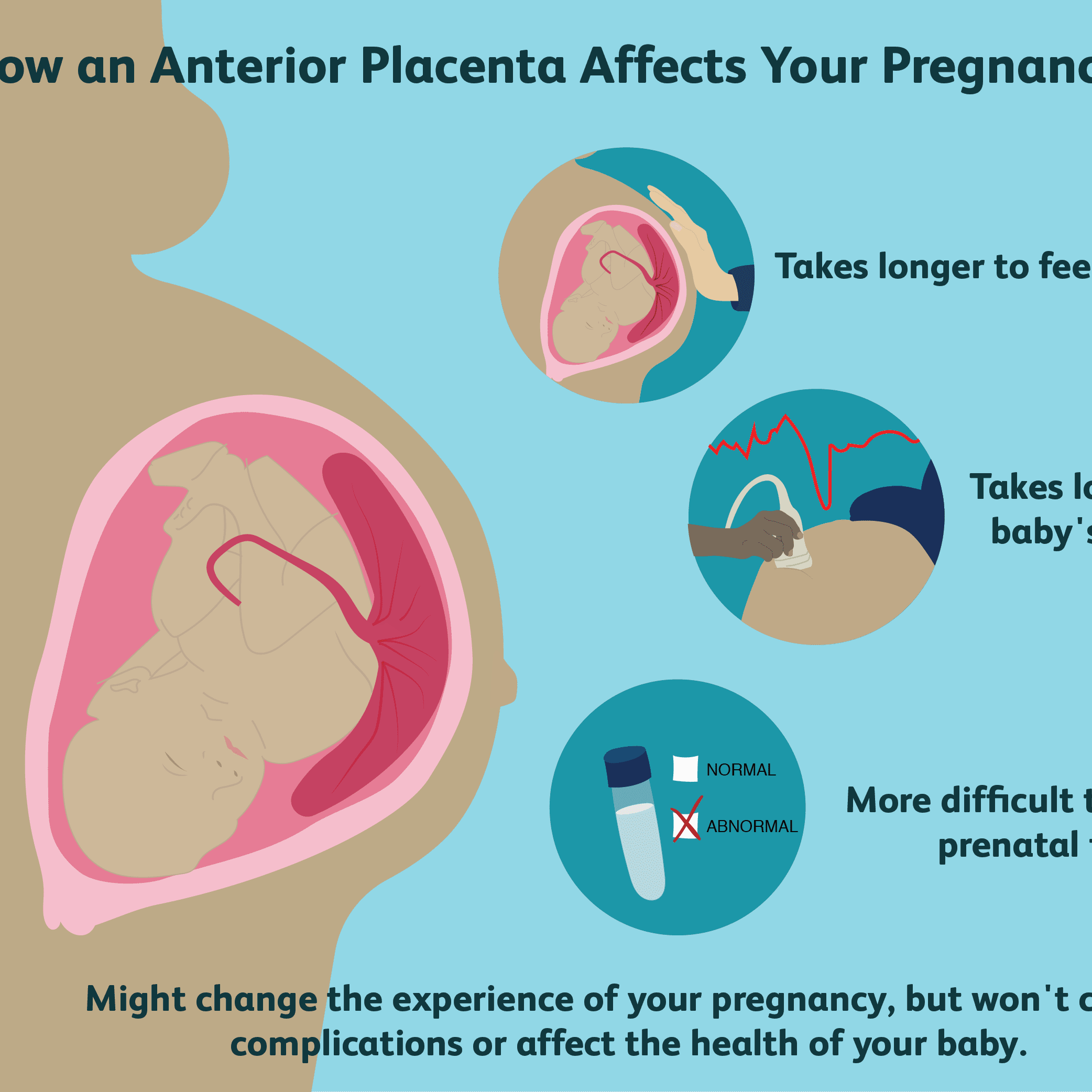 What It Means to Have an Anterior Placenta