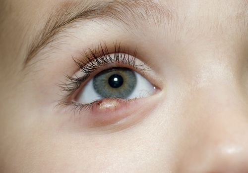 A child with a stye on his lower eyelid
