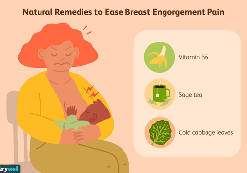 Natural remedies for breast engorgement pain