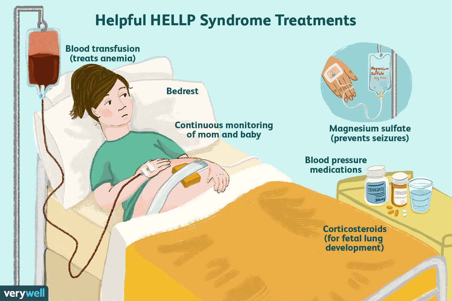 Helpful HELLP syndrome treatments