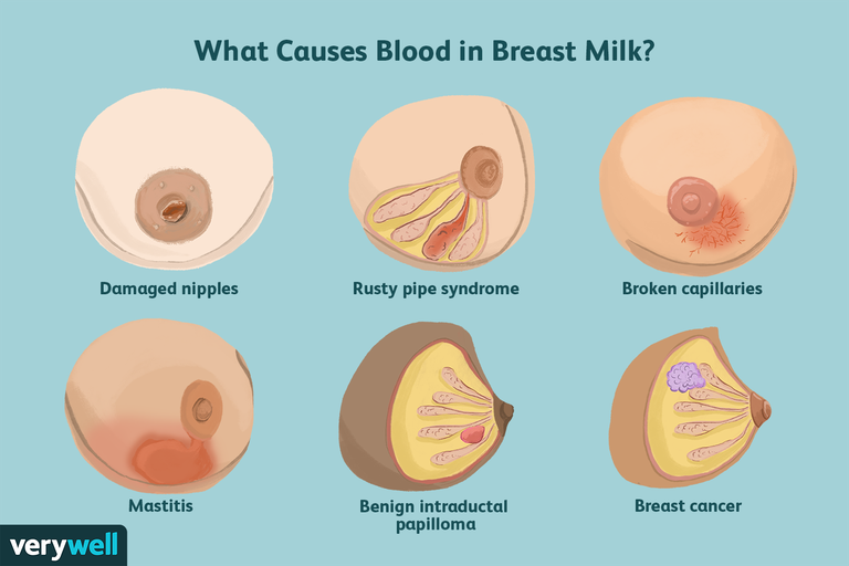 What causes blood in breast milk