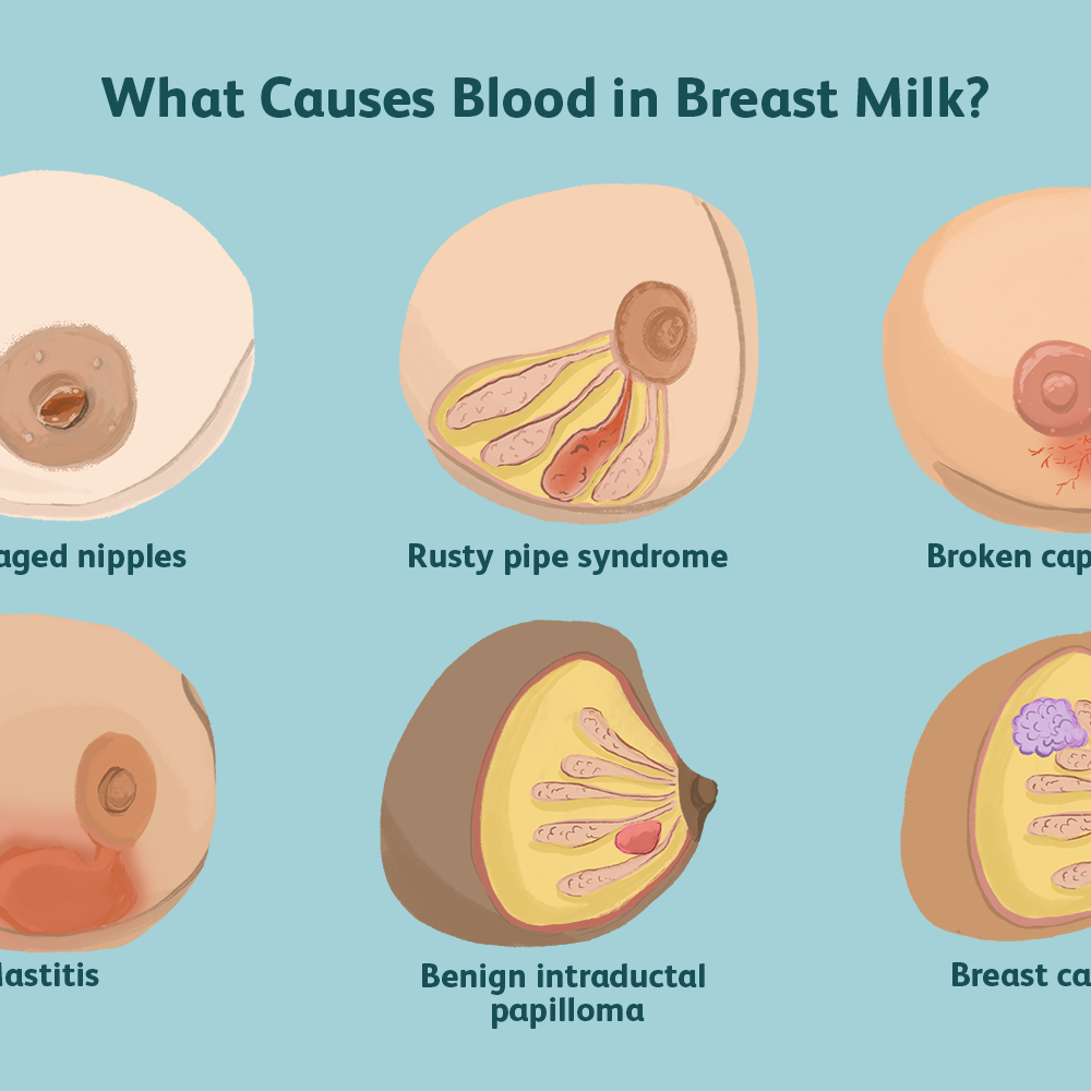 Causes And Safety Of Blood In Breast Milk