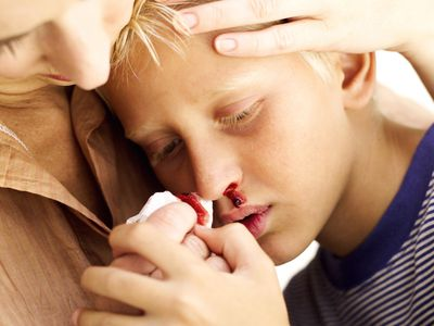 Mother tending to her son's nosebleed