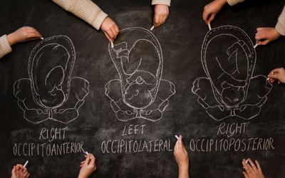 Fetal Positions in Labor