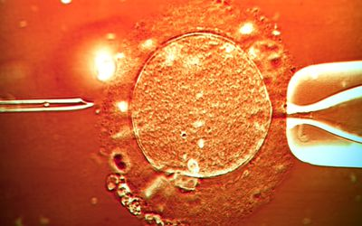 Microscopic image of ICSI-IVF being performed