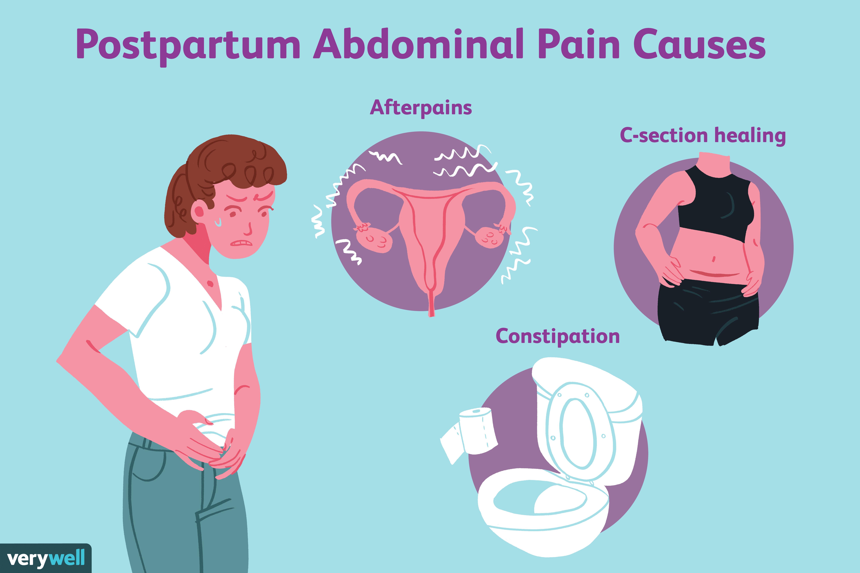 Causes of Postpartum Abdominal Pain