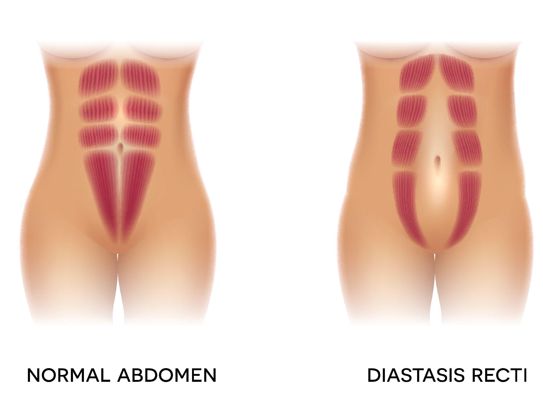 Can Diastasis Recti Be Painful?