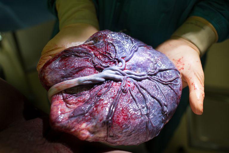 Fetal Side of the Placenta