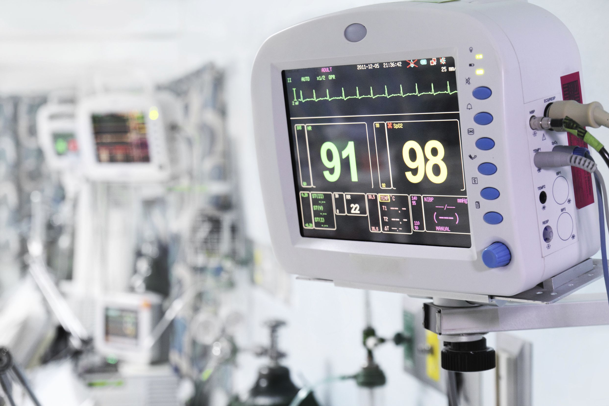 How to Read the NICU Monitors