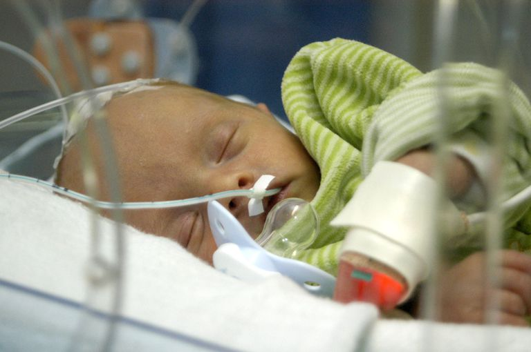 premature sleeping baby with feeding tube
