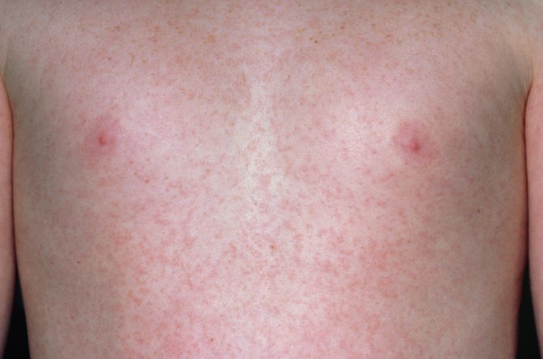 Rubella rash