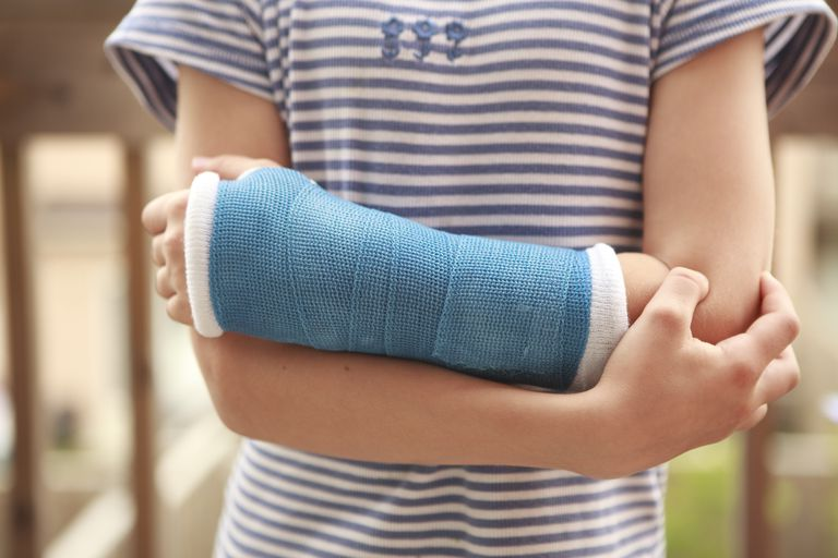kids sports injury recovery - child arm with a cast