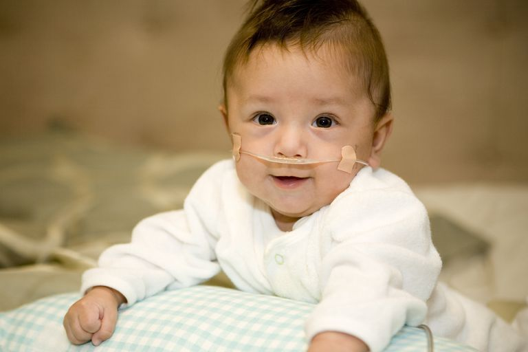 A preemie with a nasal cannula.