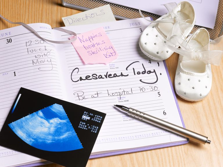 Caesarean Today note on a calendar with ultrasound picture and baby shoes