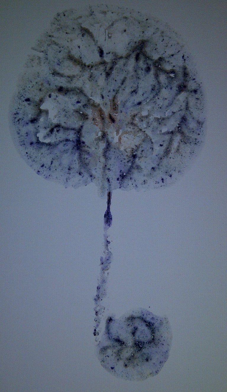 Placenta Print