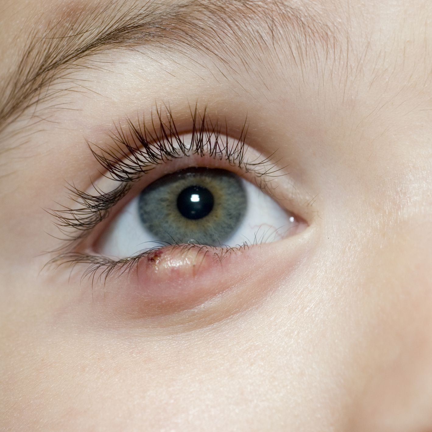 Causes and Treatments of Styes and Eyelid Bumps