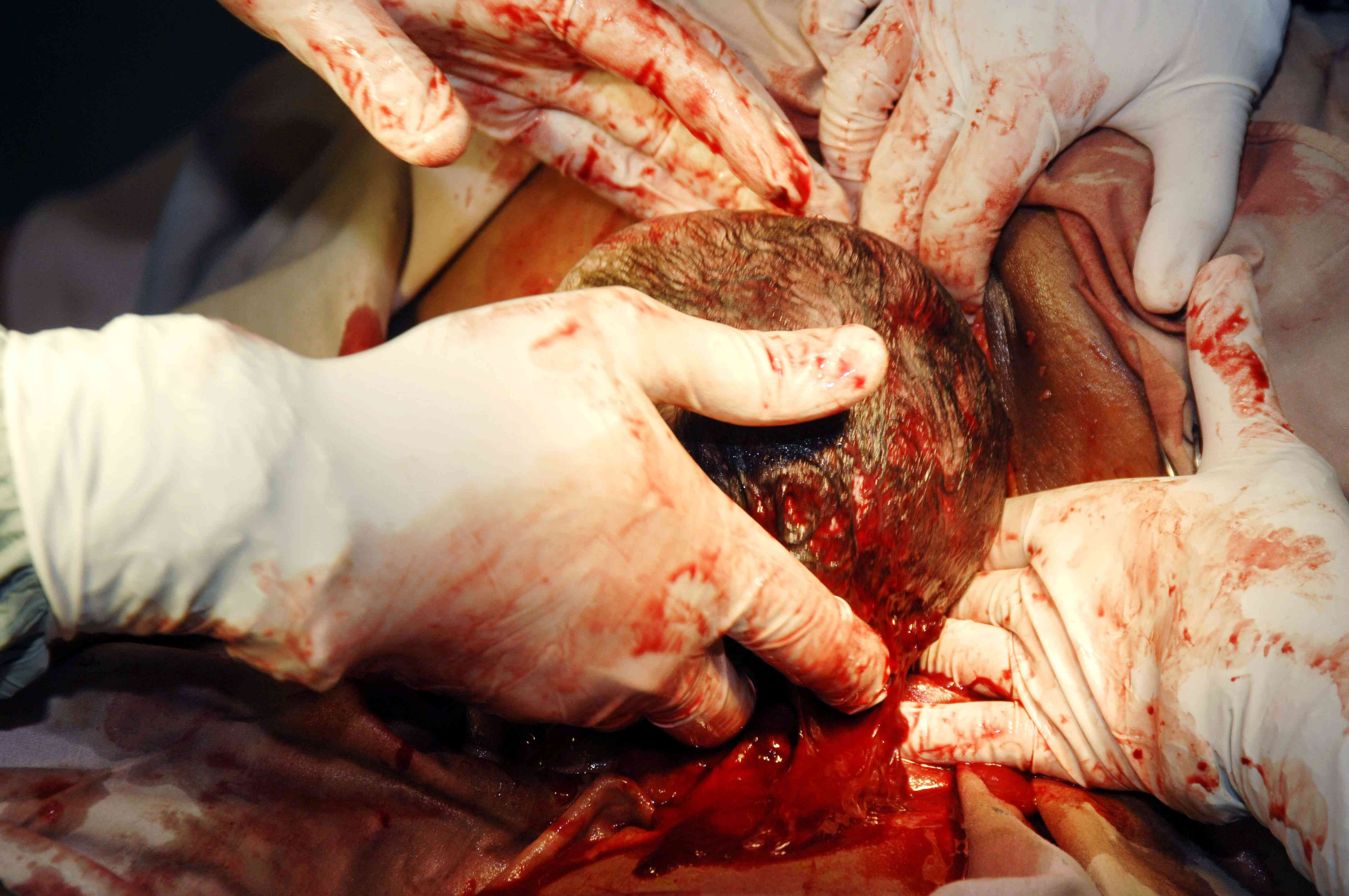 Getting the shoulders out during a cesarean section