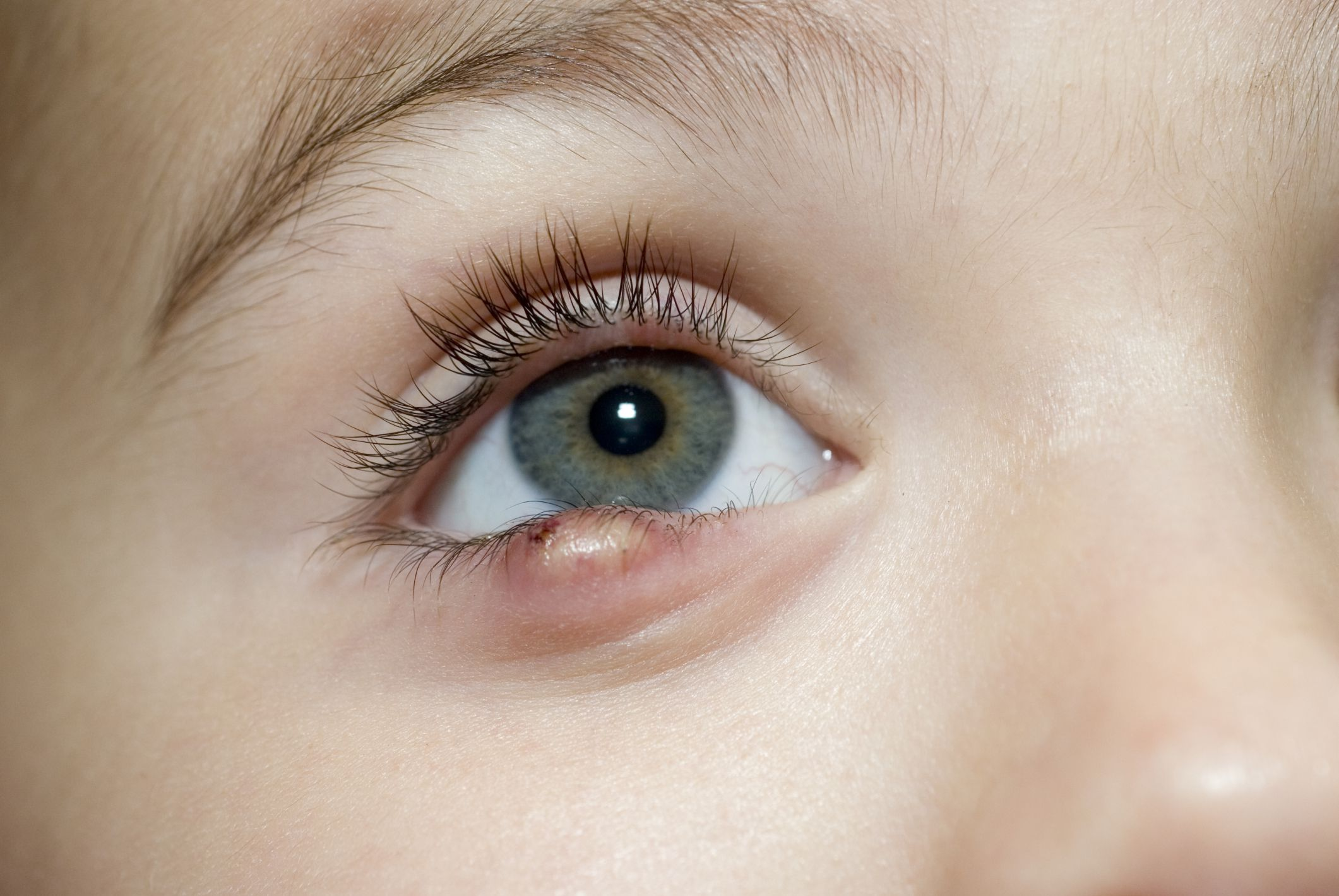 Image result for eye swelling in kids