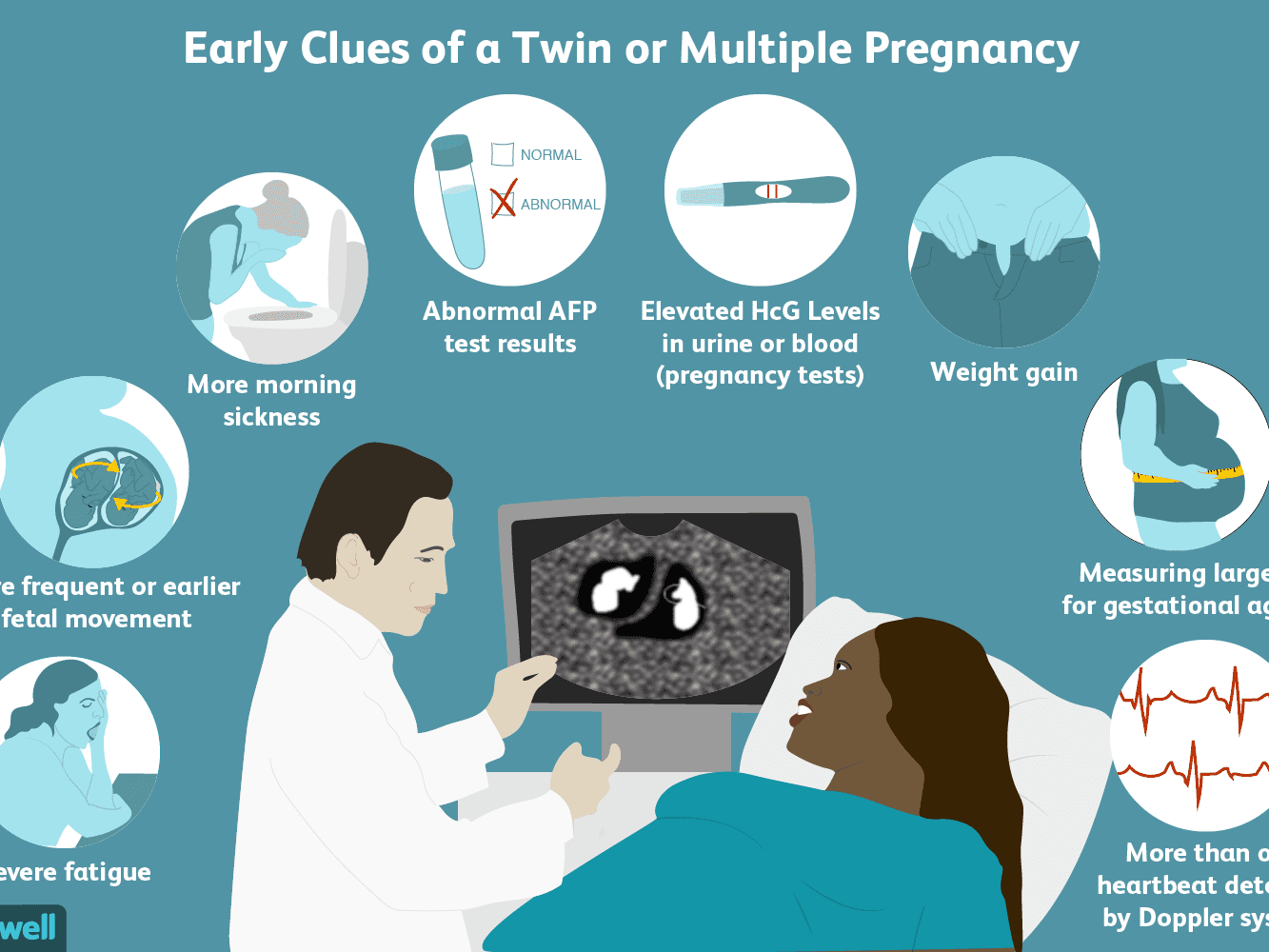 Signs and Symptoms of a Twin or Multiple Pregnancy