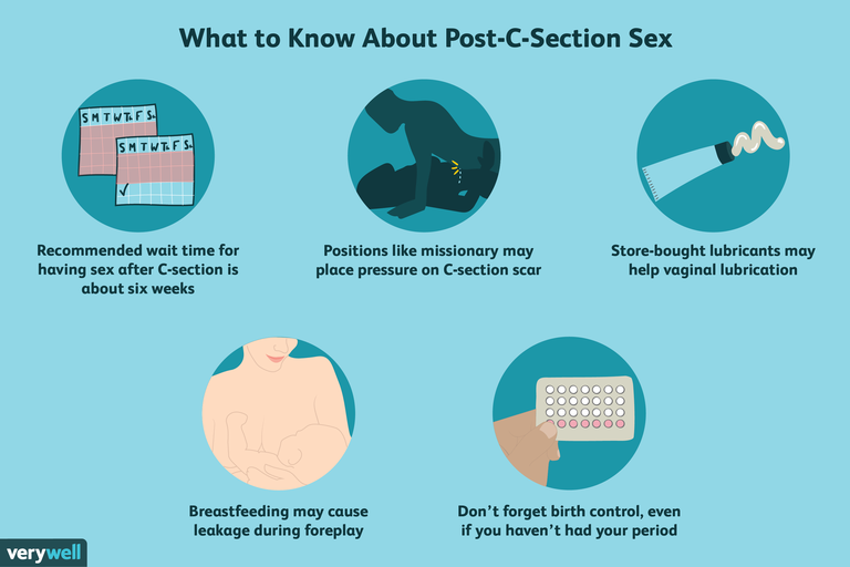 Post-C-Section Sex